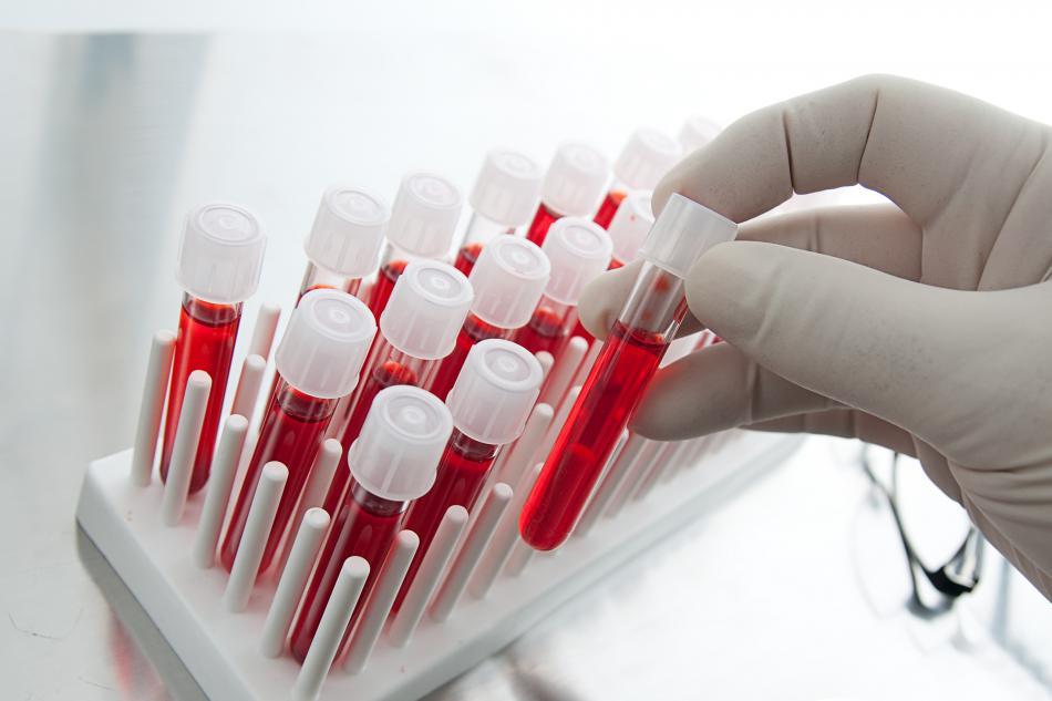 Сдача спермы на анализ помощь медсестры 25 фотография