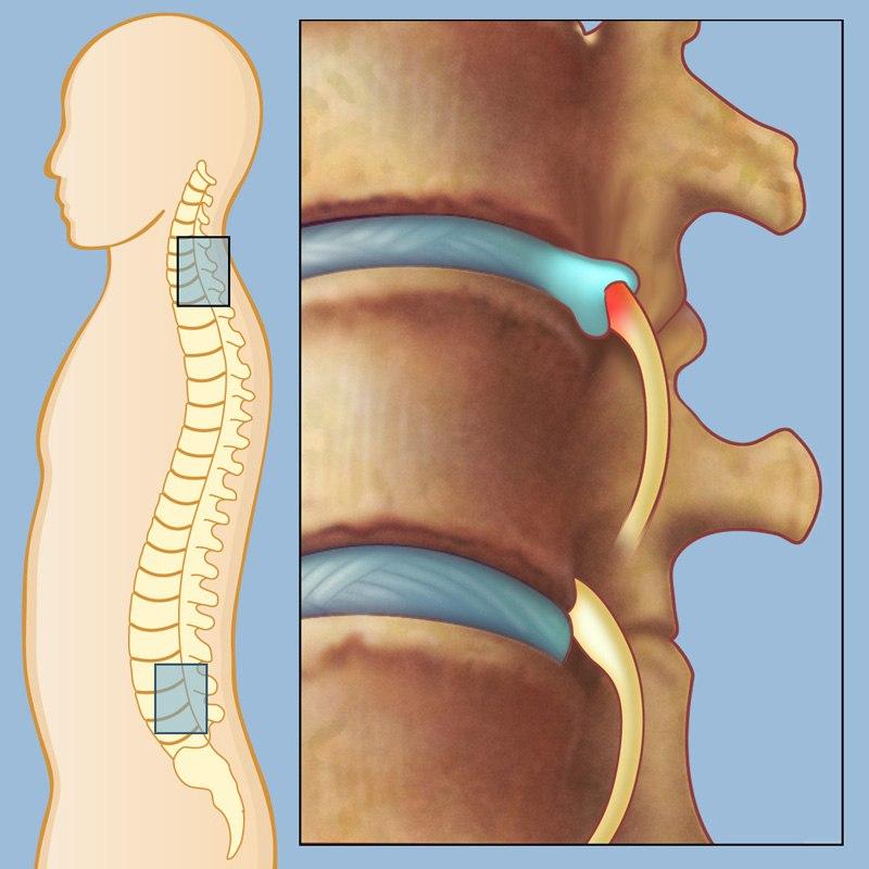 В какой клинике можно сделать операцию на грыжу thumbnail